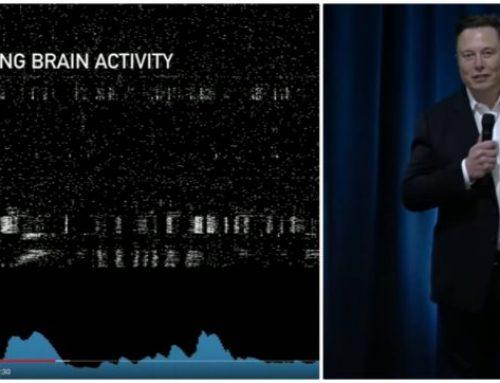 Un impianto cerebrale per monitorare le funzioni del cervello (Raccolta articoli)
